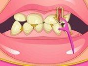 Albirea dintilor la dentist