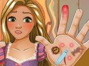 Rapunzel Infectie la mana